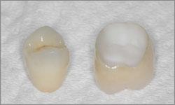Zircone couronne dentaire